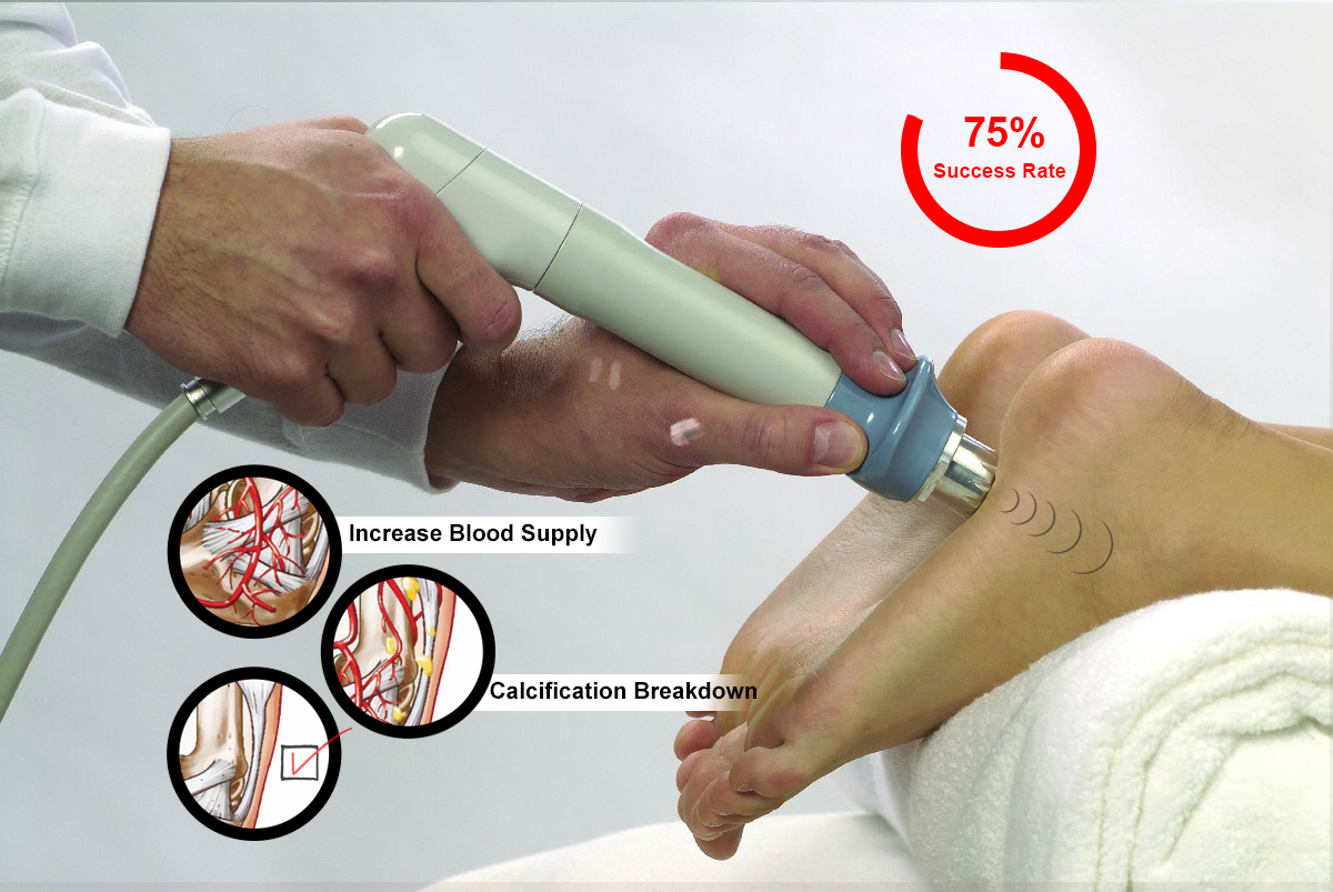 Shock Wave Therapy For Plantar Fasciitis