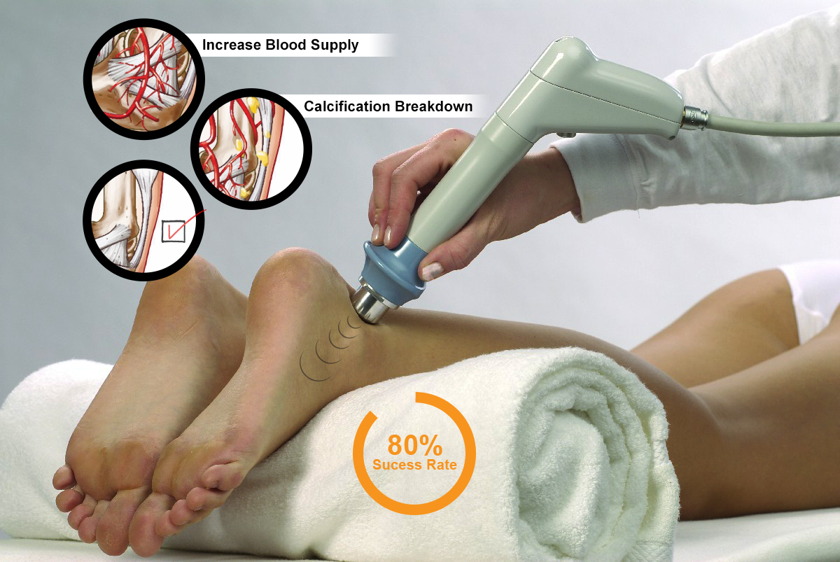 Shock Wave Therapy Achilles For Tendonitis